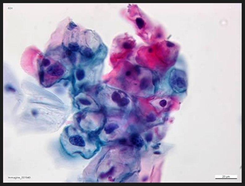 Vaccino hpv sardegna Vierme rotunde ouă vierme
